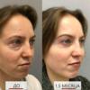 endoskopicheskij lifting lica