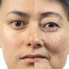 kak dolgo sohranyajutsya effekty lica posle semki ipl