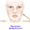 omolozhenie fibroblastami