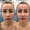 omolozhenie lica fullface 1