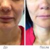 omolozhenie lica thermocool alternativnyj variant dlya bolee molodoj kozhi