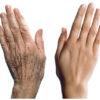 starenie kozhi ruk